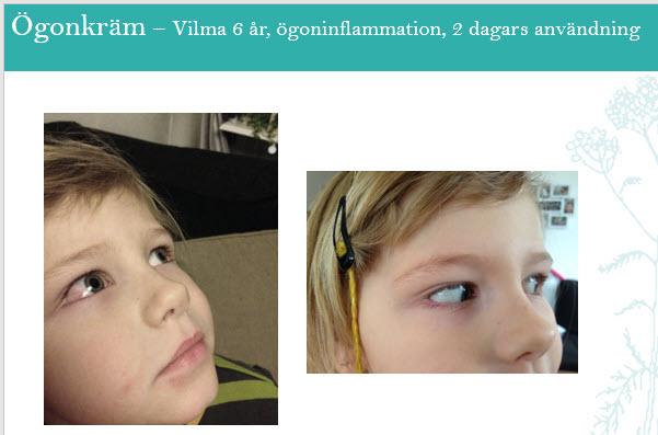 ögonkräm Vilma
